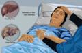 Depiction of a liver failure patient.png