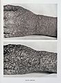 Eruption of smallpox on hand Wellcome L0032955.jpg
