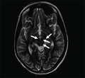 Face of the giant panda sign in Wilson's disease.png
