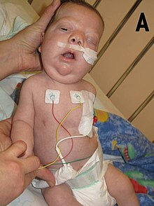 Noonan syndrome - Wikipedia