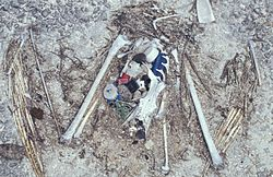 The remains of this Laysan Albatross chick show the plastic ingested before death, including a bottle cap and lighter.