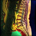 Lumbosacral MRI case 05 10.jpg