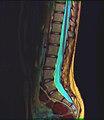Lumbosacral MRI case 14 09.jpg