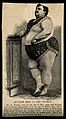 Mr E. Naucke, weighing 410 lbs. Reproduction of wood engravi Wellcome V0007206.jpg