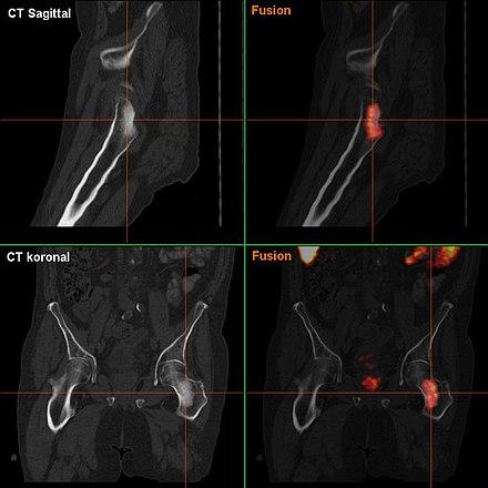 nachblutung nach prostata op