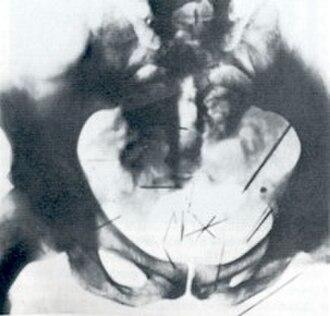 Self-embedding - Albert Fish with 27 inserted needles