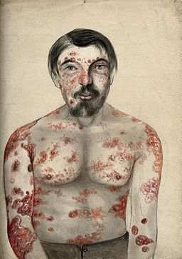 Psoriasis and syphilis; lesions on face and body, 1866 Wellcome V0010104