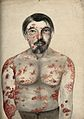 Psoriasis and syphilis; lesions on face and body, 1866 Wellcome V0010104.jpg