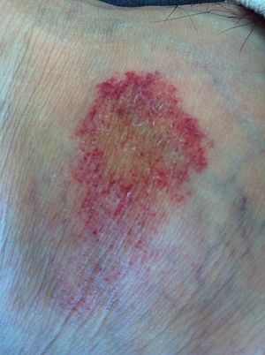 Pigmented Purpuric Dermatosis Natural Cure