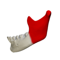 Ramus of the mandible - close up - lateral view.png