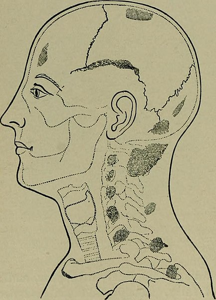 File:Text-book of nervous diseases; being a compendium for the use of students and practitioners of medicine (1901) (14763685262).jpg