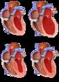 Tipet e kardiomiopative.png