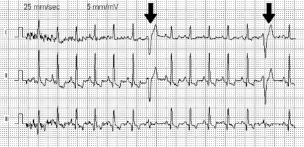 premature ventricular contraction wikiwand