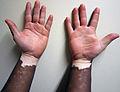 Vitiligo1.JPG