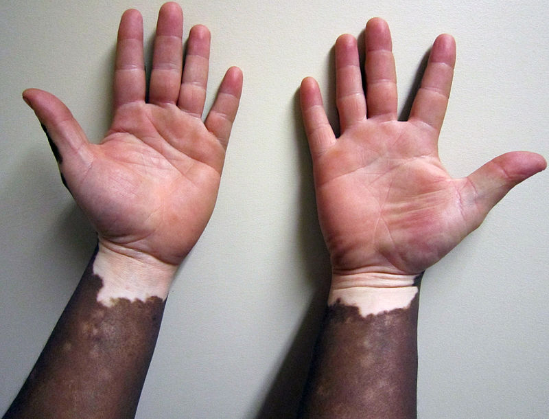 800px-Vitiligo1.JPG