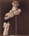 Wbell-broken-femur.jpg
