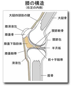 両側膝蓋骨軟骨軟化症とは
