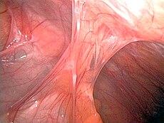 disfunción eréctil después de apendicectomía