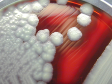 """B. cereus"" colonies on a sheep-blood agar plate"