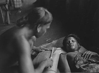 History of tattooing - Dayak tattooing in progress.