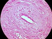 Classic Invasive Lobular Carcinoma of the Breast (6813147194).jpg