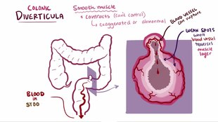 File:Diverticula, diverticulitis, diverticulosis video.webm