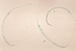 Conservation biology of parasites - Larvae of the guinea worm: probably the next species to exterminate.