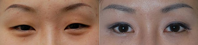East Asian blepharoplasty before after