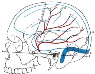 Middle meningeal artery - Relations of the brain and middle meningeal artery to the surface of the skull.