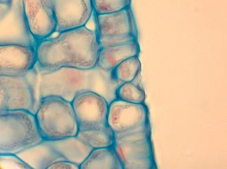 Stoma - A stoma in cross section