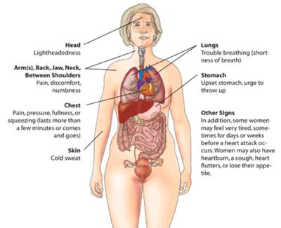 Infarto Miocardico Acuto Nella Donna Wikipedia