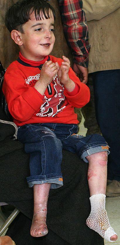 Iraqi-boy-epidermolysis bullosa-090216-M-8096M-001.jpg