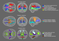 Major white matter tracts.png