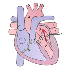 Mitral Regurgitation scheme1.png