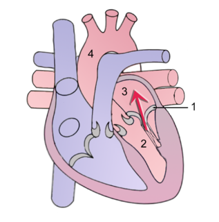 Mitral insufficiency Form of valvular heart disease