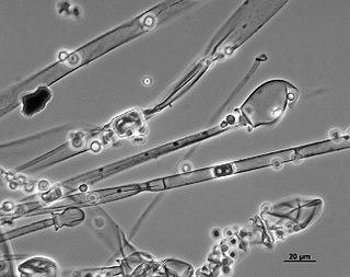 <i>Mucor racemosus</i> species of fungus