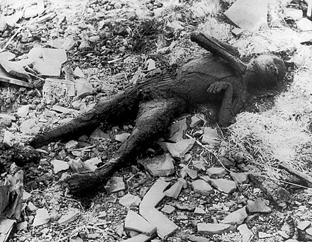 Partially incinerated child in Nagasaki. Photo from Japanese photographer Yosuke Yamahata, one day after the blast and building fires had subsided. Once the American forces had Japan under their military control, they imposed censorship on all such images including those from the conventional bombing of Tokyo; this prevented the distribution of Yamahata's photographs. These restrictions were lifted in 1952. Nagasaki - person burned.jpg