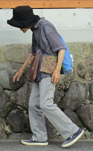 English: An osteoporotic elderly women in Japan.