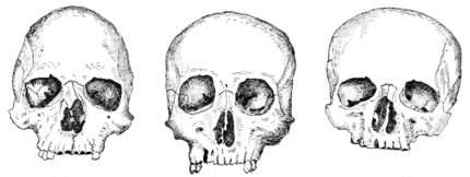 PSM V59 D404 Cephalic indexes of skull shapes.png