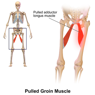 Groin the two creases at the junction of the torso with the thighs, on either side of the pubic area