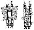 Réduction fracture du fémur par l'appareil de Lucien Baudens.jpg