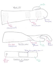 how to make a hand splint