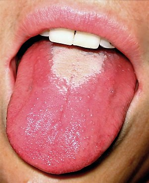 black spots on tongue pregnant