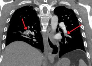 CT pulmonary angiogram - CT pulmonary angiogram showing segmental and subsegmental pulmonary emboli on both sides.