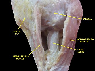 Medial rectus muscle - Image: Slide 3aba