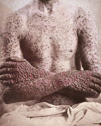 A case of smallpox, 1886 Variola 1.jpg