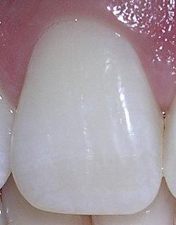 Mandibular central incisor - WikiVisually