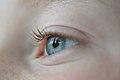Auge Böhringer A 2.JPG