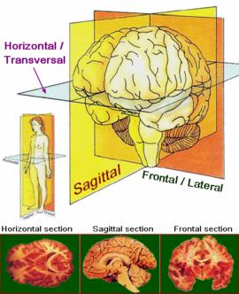 Schémas anatomiques explications physiopathologiques