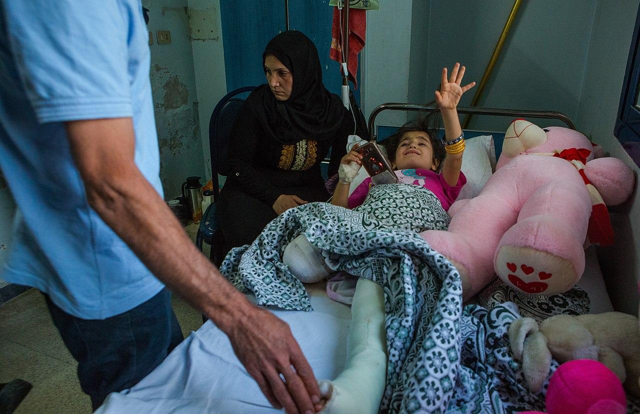 Barış Pınarı harekâtı sonrası Kamışlı'da yaralandıktan sonra bir ayağı kesilen diğer ayağı da kırılan 8 yaşındaki Sarah.jpg